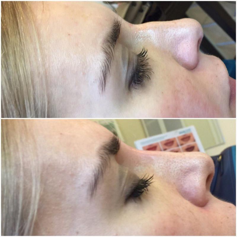 Коррекция спинки носа